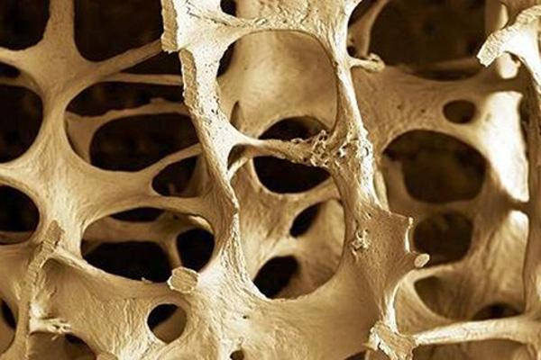 Natural treatment remedies for osteoporosis publicscrutiny Gallery