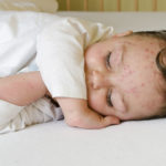 Do Childhood Infections Like Chicken Pox and Measles Prevent Cancer?