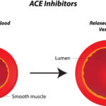 Natural Alternative Remedies Instead of ACE Inhibitors