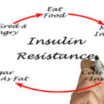 Insulin Resistance | Causes, Symptoms, Natural Treatments