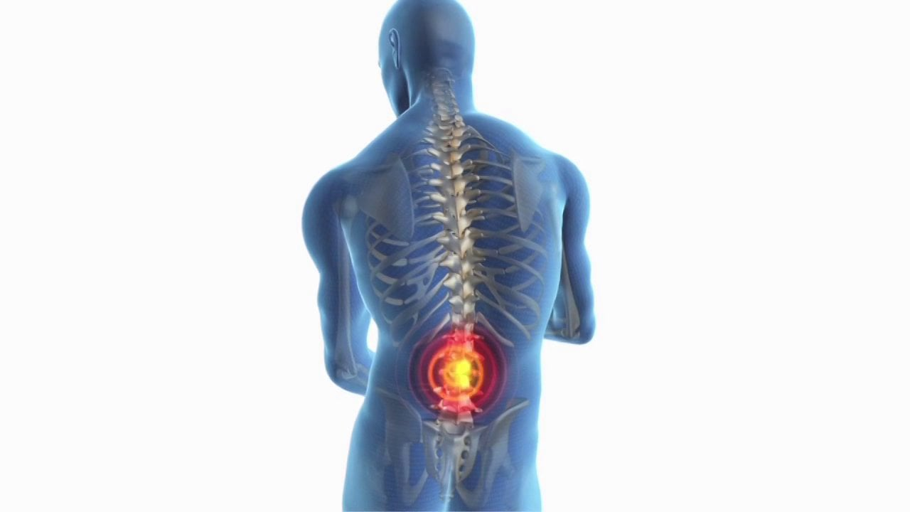 Natural Treatment Remedies for Back Pain