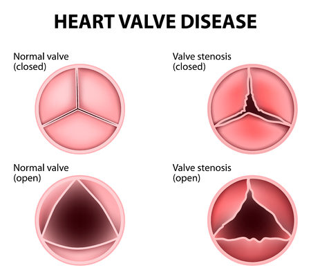 Aortic Valve Natural Remedies The Drs Wolfson