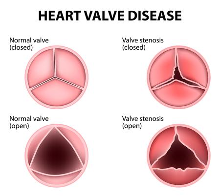 Natural Remedies For Heart Valve Regurgitation