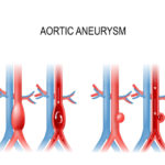 Abdominal Aortic Aneurysm (AAA)   Natural & Surgical Treatment Options