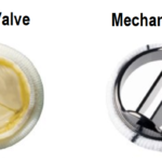 Mechanical Heart Valves- Are there natural alternatives to Coumadin