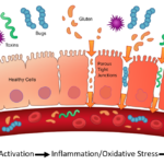 How a Leaky Gut Leads to Atrial Fibrillation
