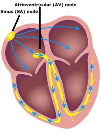 Heart Block Treatment Options